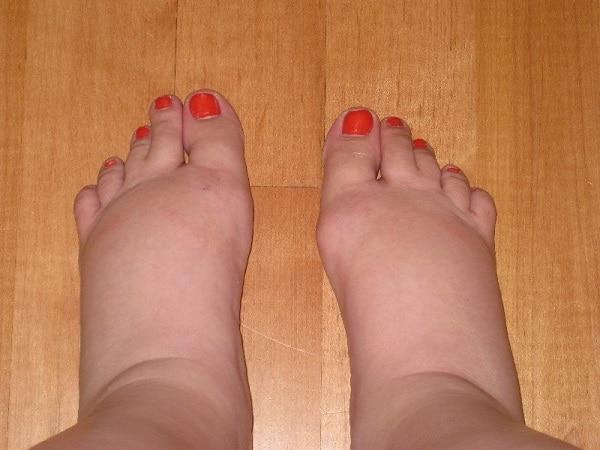 ayak şişliğine ne iyi gelir