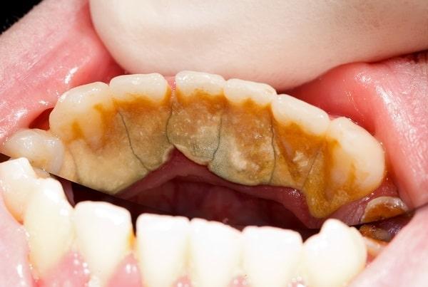 diş tartarı neden olur