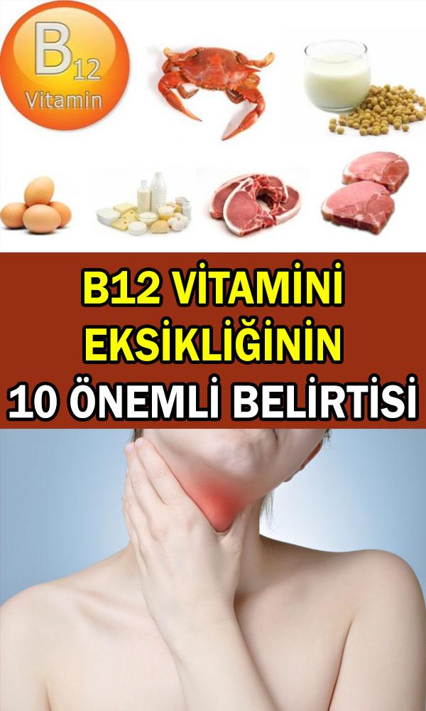 b12 vitamini eksikliği belirtileri