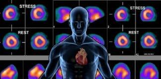 kalp sintigrafisi yan etkileri ve risleri