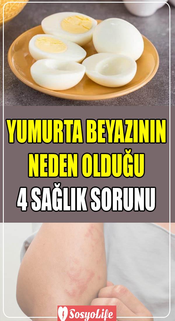 yumurta beyazının zararları