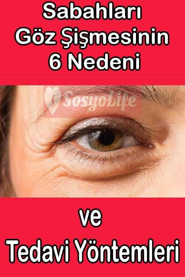 göz şişmesi nasıl geçer, göz şişkinliği tedavisi