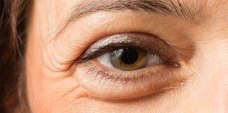 gözlerde şişme neden olur, göz şişmesi nedenleri