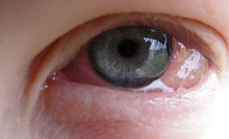 Konjonktivit göz sulanması
