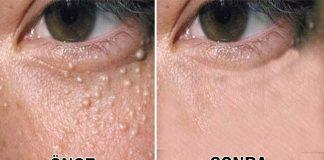 göz çevresi yağ bezeleri nasıl geçer