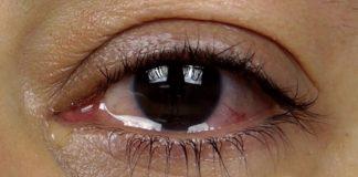 gözlerde sulanma neden olur nasıl geçer