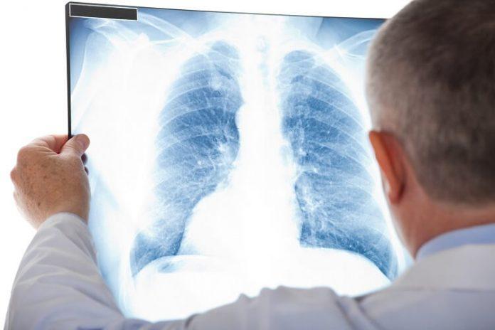romatoid artrit akciğerleri nasıl etkiler