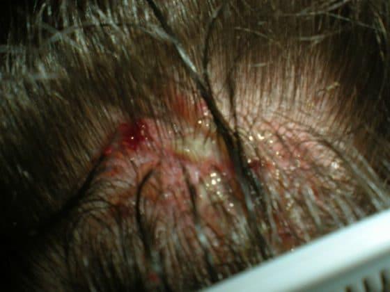 saç derisinde iltihaplı yara