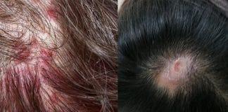 saç derisinde kabuklanma ve yara