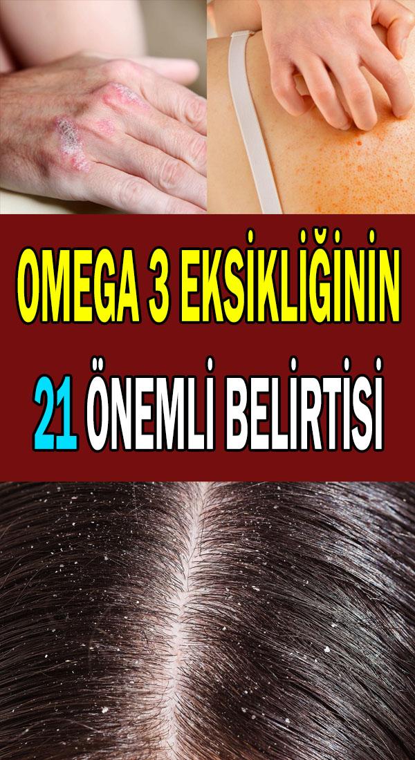 Omega 3 eksikliği belirtileri