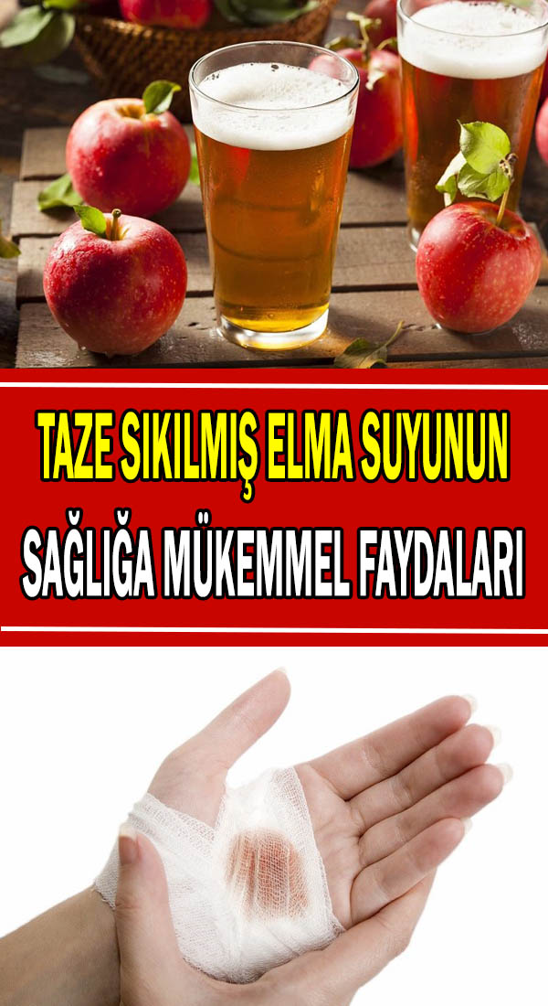 Taze elma suyunun faydaları