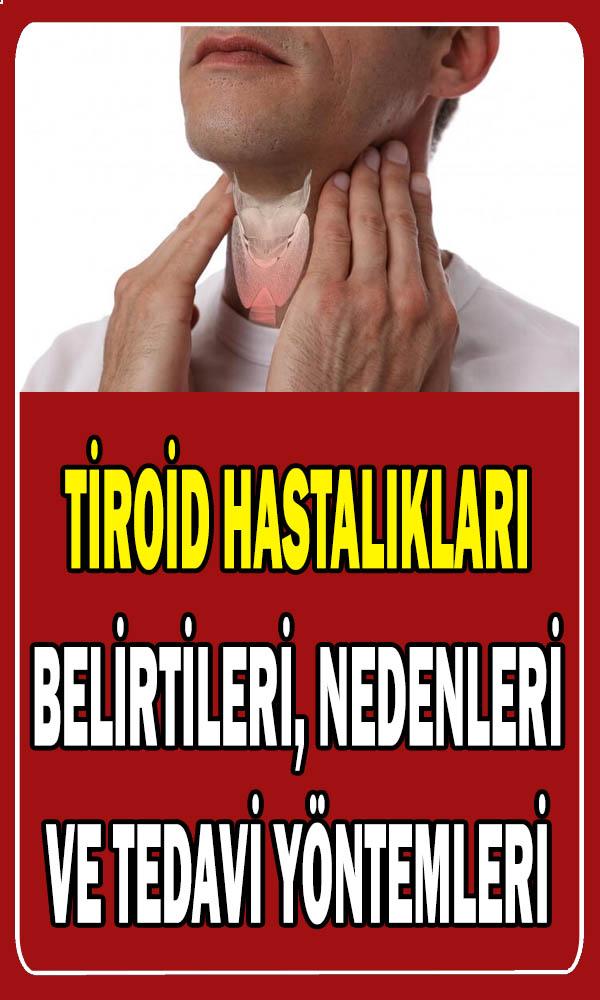Tiroid hastalıkları belirtileri