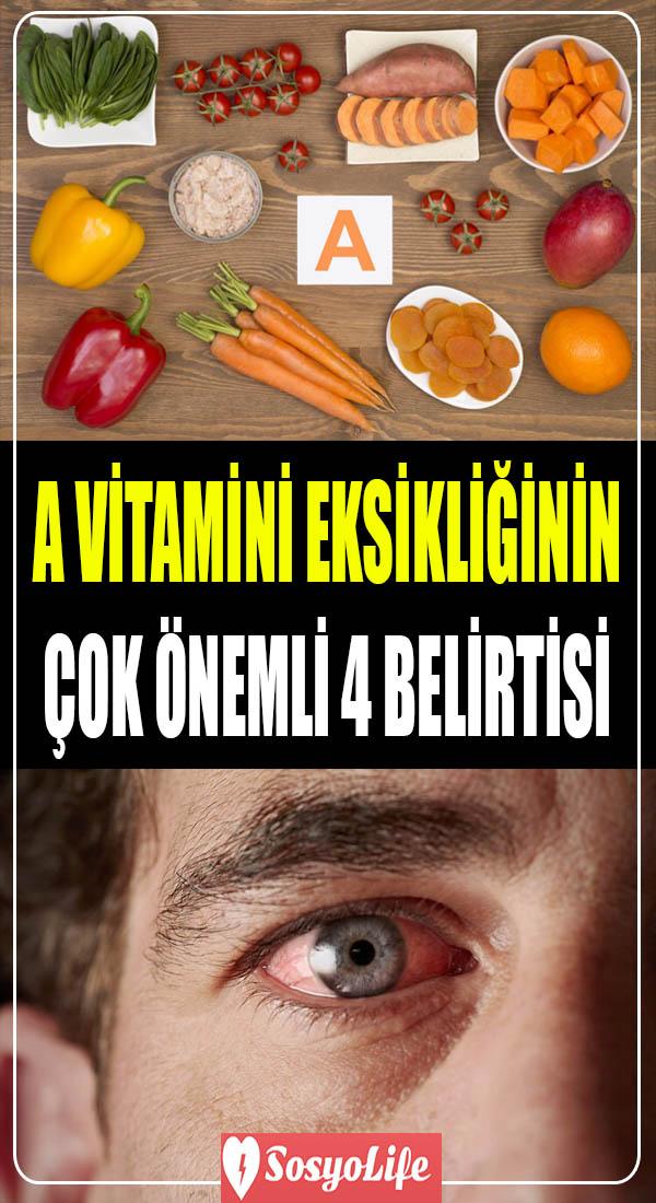 a vitamini eksikliği belirtileri nelerdir