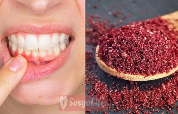 Diş eti çekilmesi tedavisi doğal çözümler