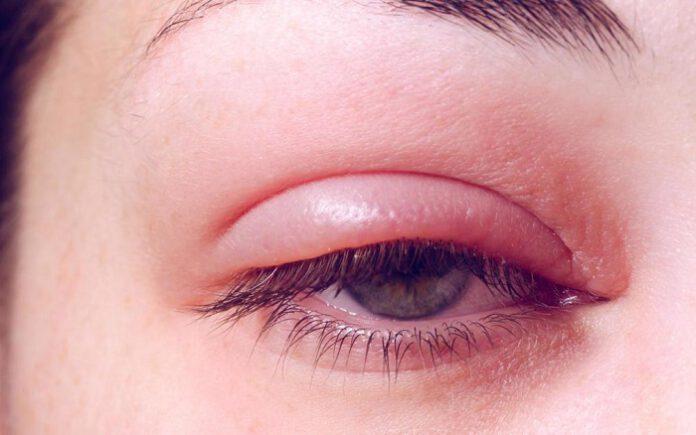 üst göz kapağı şişmesi nasıl geçer