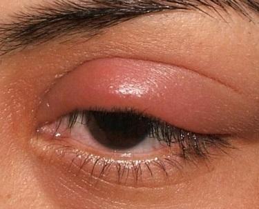üst göz kapağı şişmesi